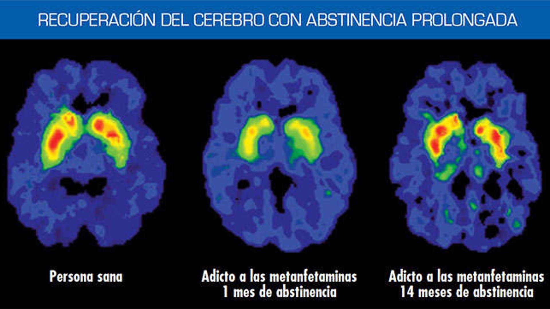 DIABESIDAD UMEBIR. Unidad de Medicina Bioregenerativa