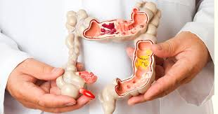 "Intestino o Colon Irritable ""La Etiqueta a la Cronicidad"""